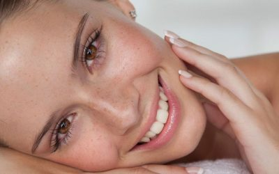 How To Clear Your Acne Naturally